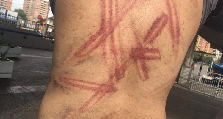 hombre golpeado por carabineros
